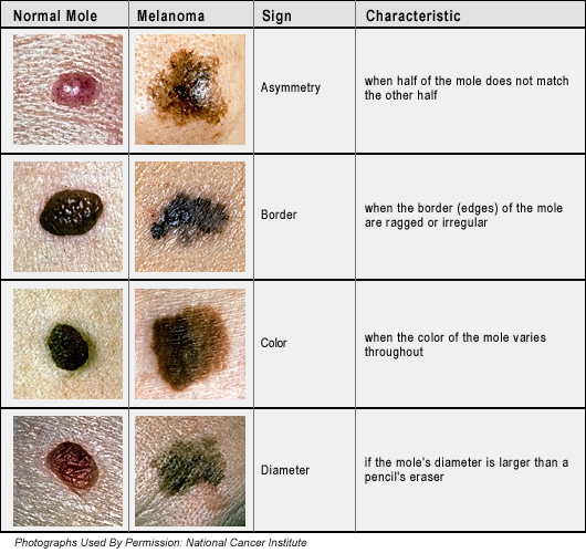 Medical Phase Skin Cancer